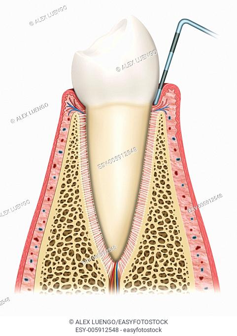 Schematic illustration in which the tooth is affected by gingivitis, gum and swelling ease