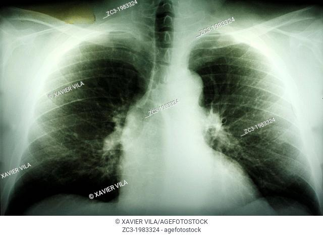 X-ray of lungs damaged