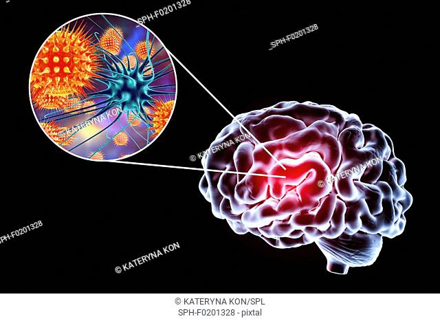 Viral encephalitis, illustration