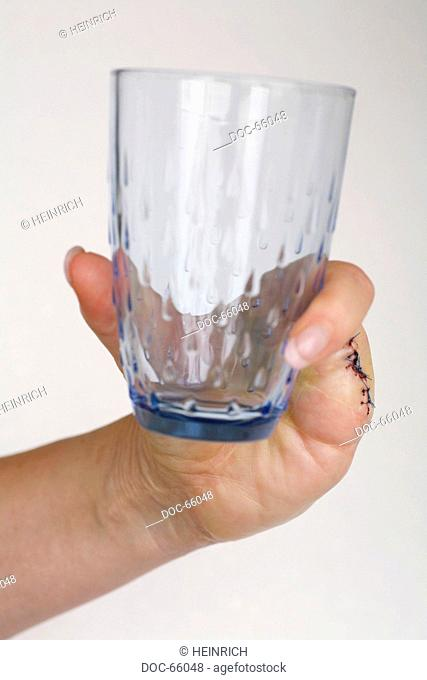 Hand of a woman having three fingers amputated - holding a glass
