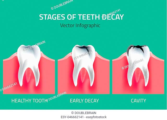 Gum disease stages Stock Photos and Images   age fotostock