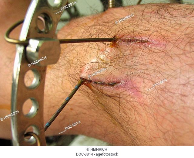 A lower leg to open debris break with Osteitis - bone inflammation - is extended with Ilizarov - technique