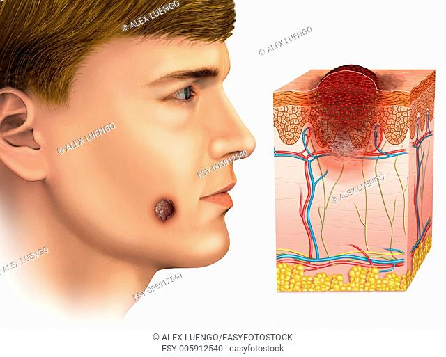Image of the face of a man affected by melanoma and melanoma desarroyo scheme