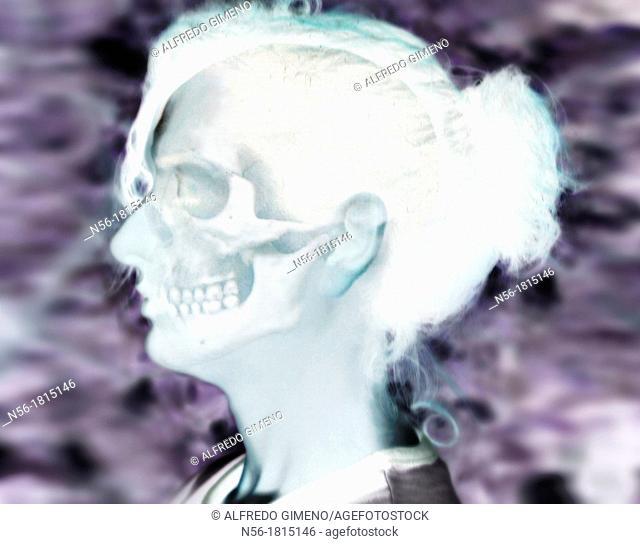 woman skull xray