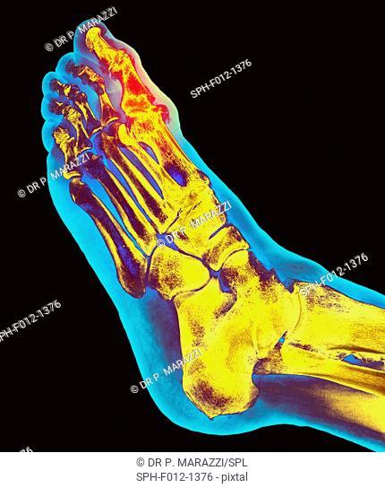 Degenerative foot deformation, X-ray