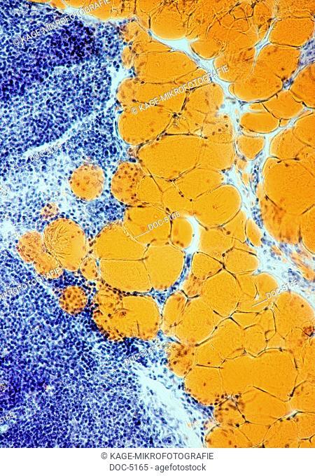 Fat cells, 250x, HF Photo-Technical Short Cuts: LUMEN = optical microscope, scanning electron microscope = scanning electron microscope, non-display field DF =