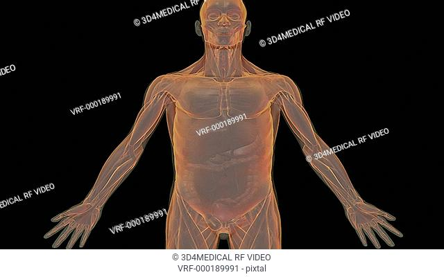 An animation of an inguinal hernia. The camera zooms the pelvis showing the hernia relative to the muscular system