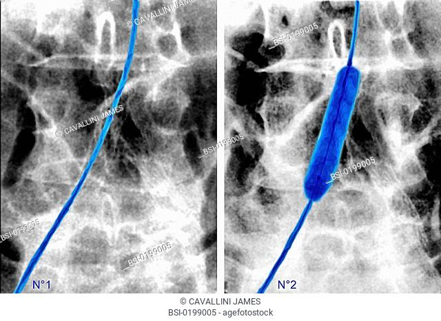 Blood flow catheter Stock Photos and Images | age fotostock