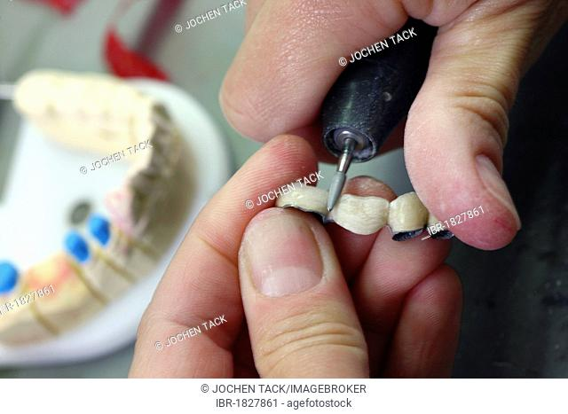 Dental laboratory, manufacture of a dental prosthesis by a master craftsman, grinding, separation, of a ceramic-veneered dental bridge