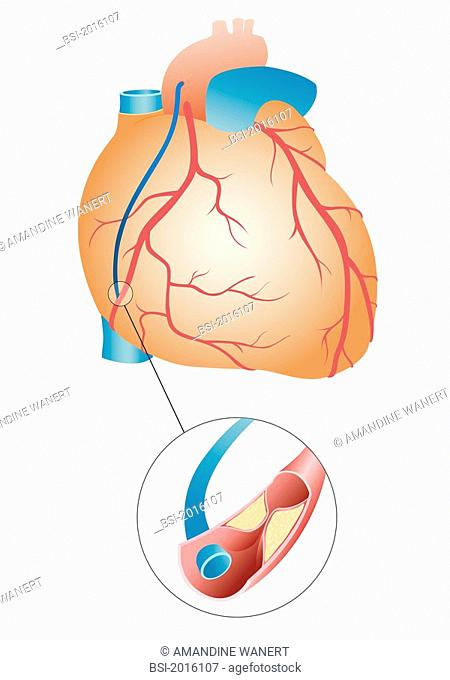 BY-PASS, ILLUSTRATION Aortocoronary bypass following a myocardial infarction. The obstruction of a coronary vessel by a plaque of atheroma is compensated by the...