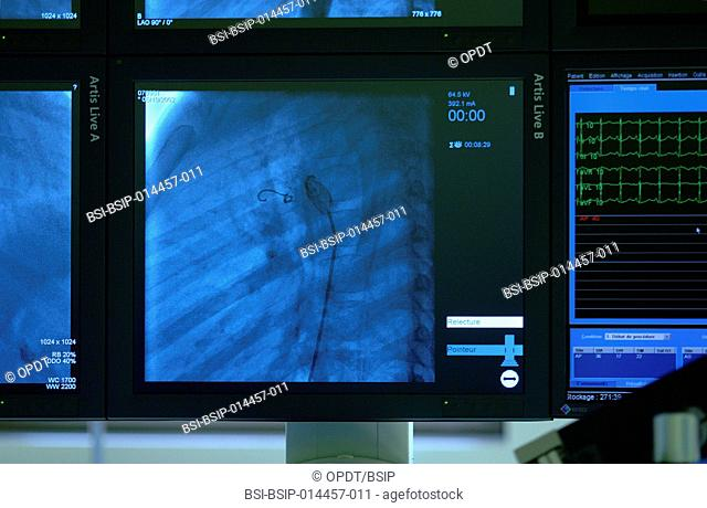 Reportage on pediatric interventional cardiology at the Marie Lannelongue Surgical Centre, Le Plessis-Robinson, France. Occluding an atrial septal defect