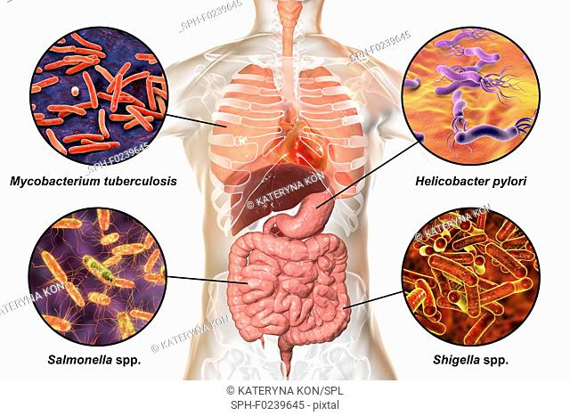 Computer illustration showing bacteria that cause infections of respiratory and digestive system, Mycobacterium tuberculosis (top left)