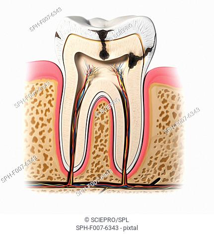 Tooth decay, computer artwork