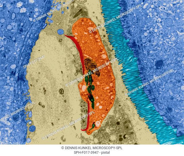 Protozoan infection (giardiasis) in human intestinal lumen (Giardia sp.), coloured transmission electron micrograph (TEM)