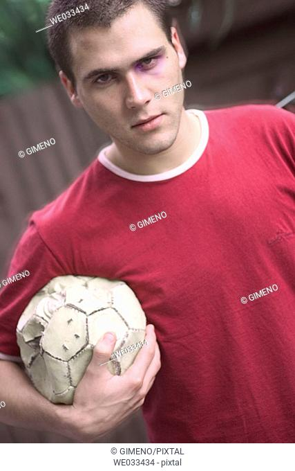 Man with bruised eye holding a soccer ball