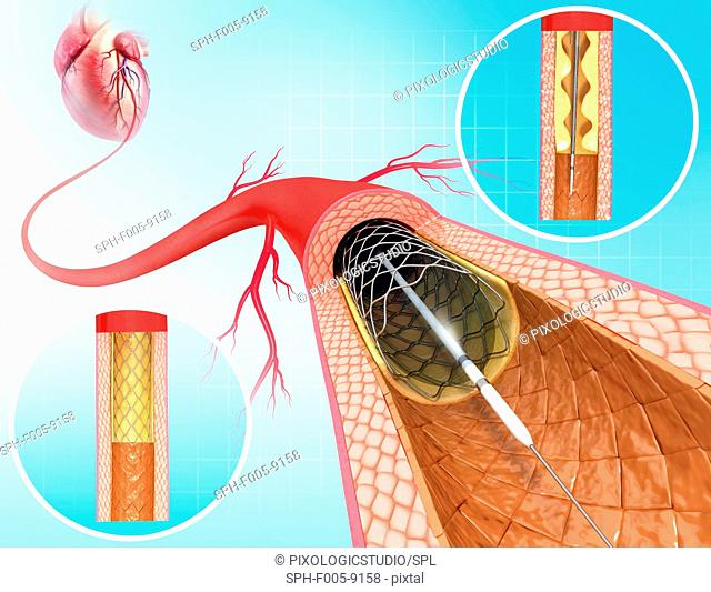 Angioplasty. Computer artwork of a stent being placed in a narrowed blood vessel
