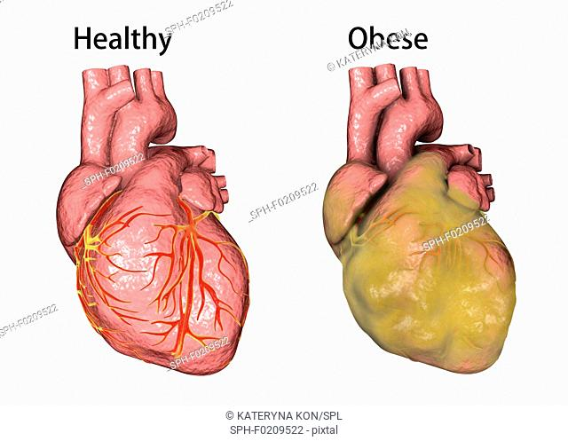 Healthy and obese hearts, illustration