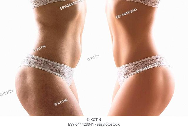 Female buttocks before and after treatment and retouch. Isolatedon white