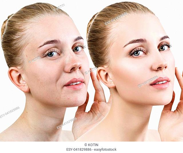 Woman's face before and after rejuvenation or plastic surgery. Anti-aging concept
