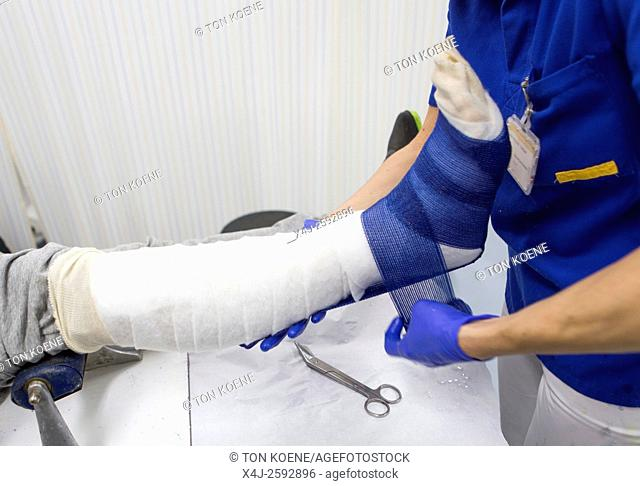 plaster cast on a fractured leg