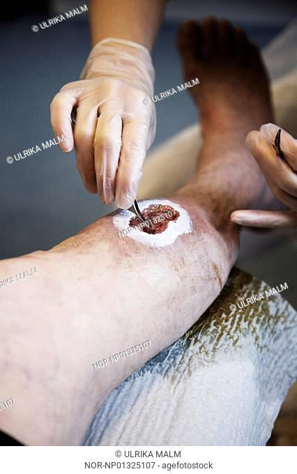 Image of a chronic leg wound on a 60 year old man