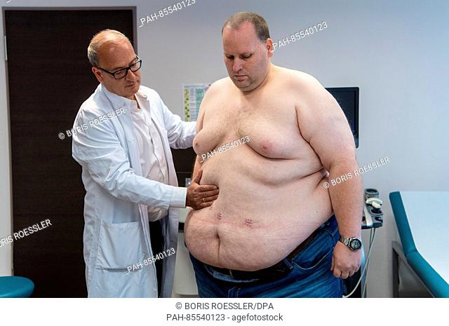 Four weeks after the surgeons formed a gastric sleeve operation, Markus John (r) being examined by Head Doctor Plamen Staikov during his first post-op...
