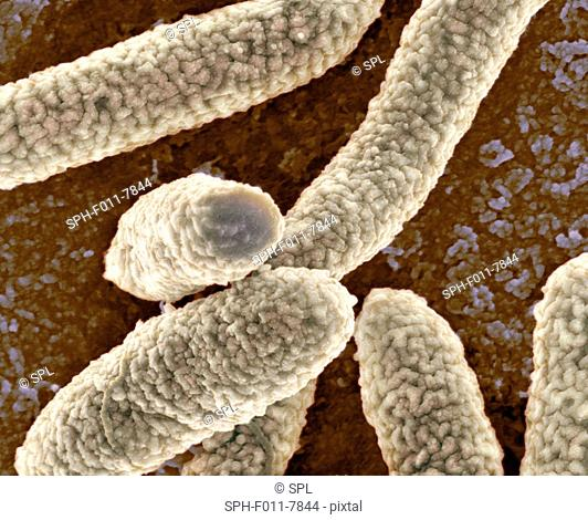 Coloured scanning electron micrograph (SEM) of Escherichia coli bacteria. Magnification: x27,800 when printed at 10 centimetres wide