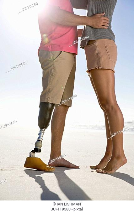 Close Up Shot Of Man With Artificial Leg Hugging Female Partner On Romantic Summer Beach Vacation