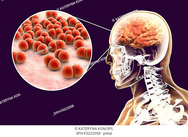 Brain infection caused by Streptococcus pneumoniae bacteria
