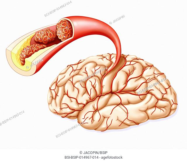 Illustration of blood flow in the brain, highlighting the various vascular pathologies that can lead to a CVA. -the presence of atheromatous plaque in the brain...