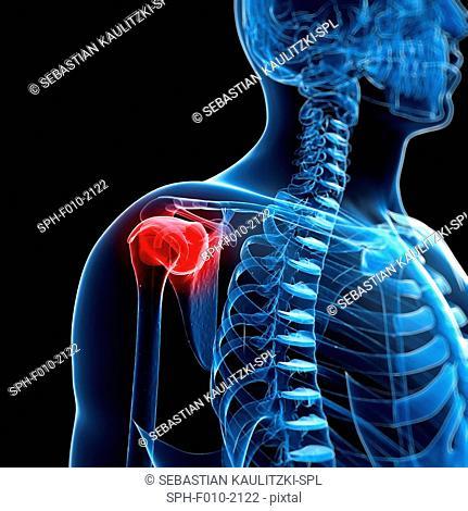 Human shoulder pain, computer artwork