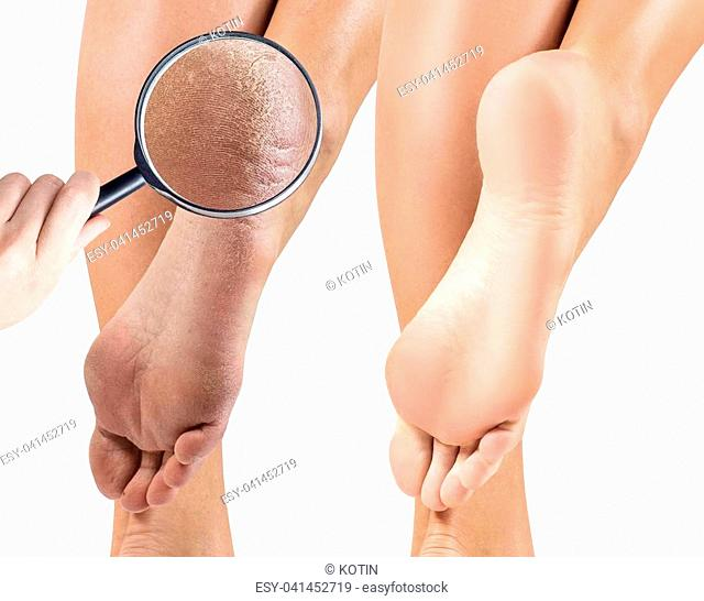 Female feet with dry skin and cracks before and after treatment. Zoom by magnifying glass. Isolated on white background