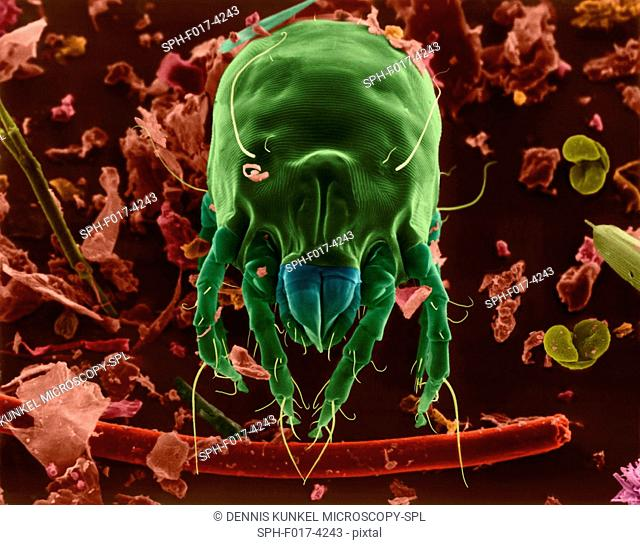 Coloured scanning electron micrograph (SEM) of Dust mite (Dermatophagoides sp.). Millions of dust mites inhabit the home