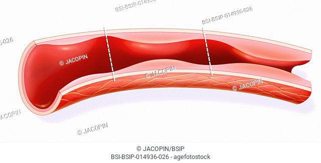 Illustration of an artery. On the left, the lining is normal, with normal arterial pressure. In the centre, the lining is thicker and diminishes the internal...