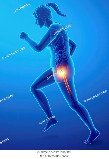 Woman with hip pain, illustration