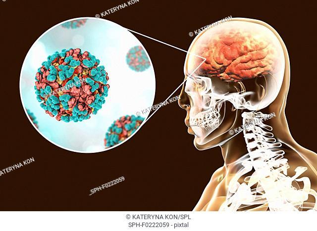 Venezuelan equine encephalitis viruses infecting human brain