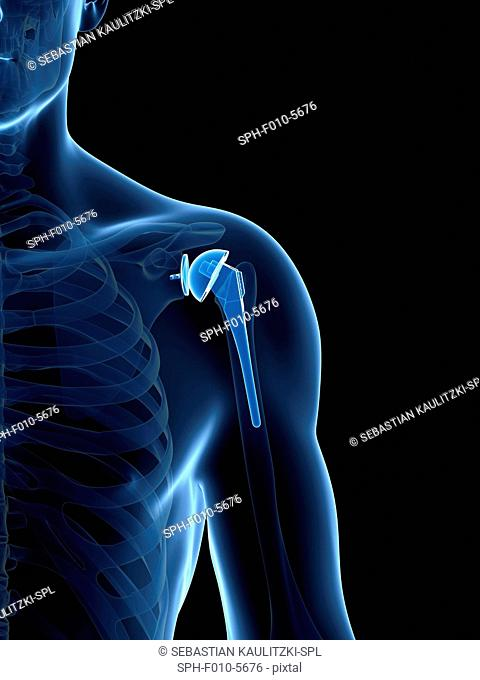 Human shoulder replacement, computer artwork