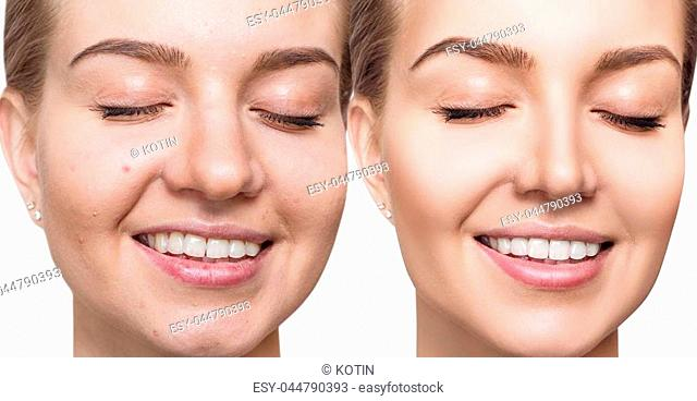 Young woman before and after skin treatment. Over white background