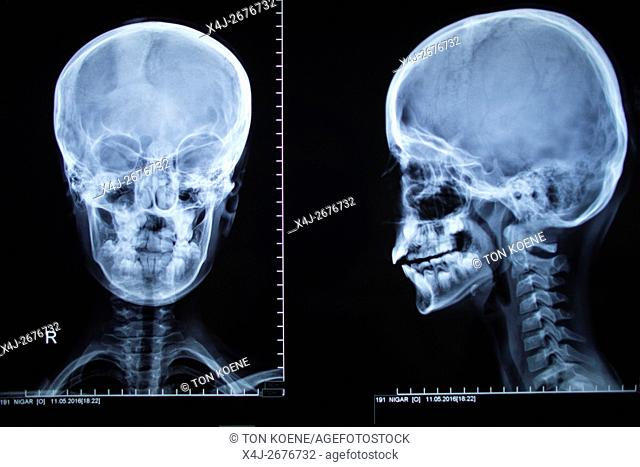 X-ray of a human head