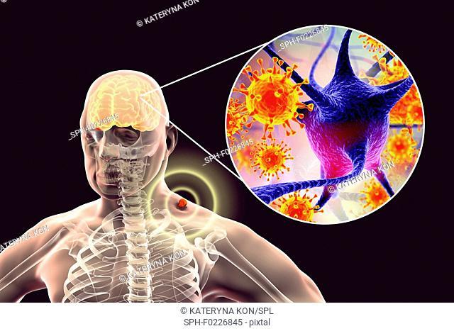 Tick-bourne encephalitis, illustration