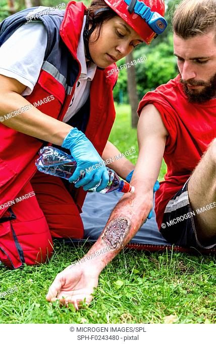 Medical worker treating burns on man's arm