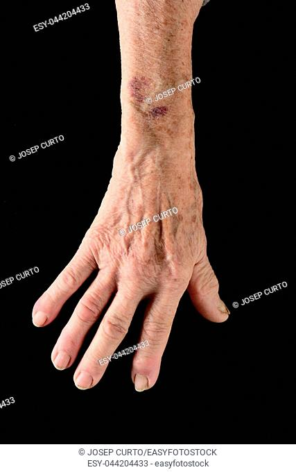 detail of the hand and arm of an elderly woman with a bruise