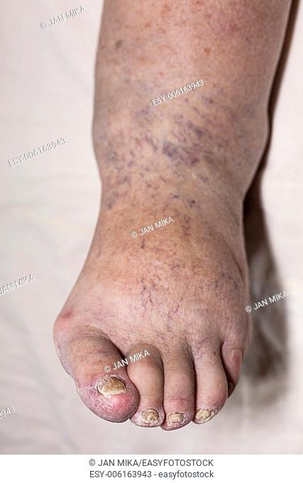 Detail of ill senior female swollen leg with damaged toes and nails