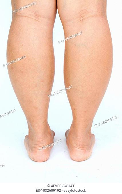 Asian fat women's feet on gray background