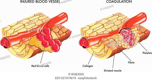 medical illustration of the process of blood coagulation