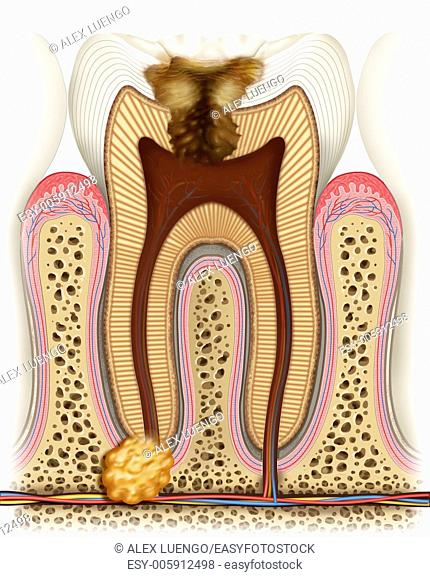 This illustration shows us how the caries has reached its maximum degeneration destroying the wheel with arteries, veins and nerves completely useless and...