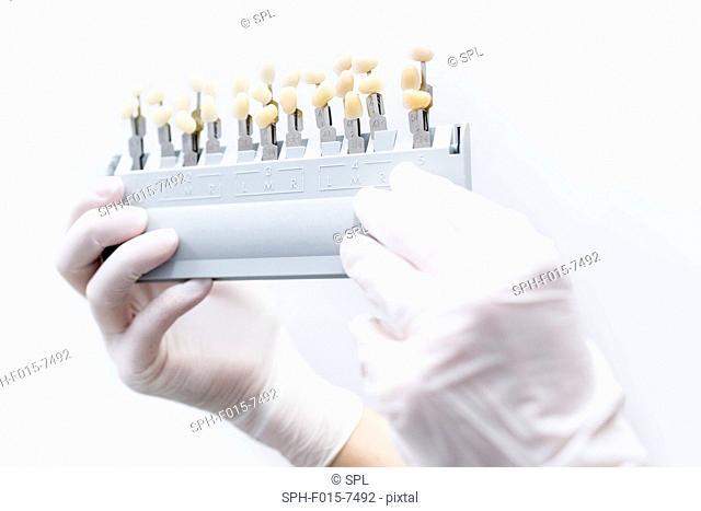 Hand holding dental veneer examples in dentist clinic