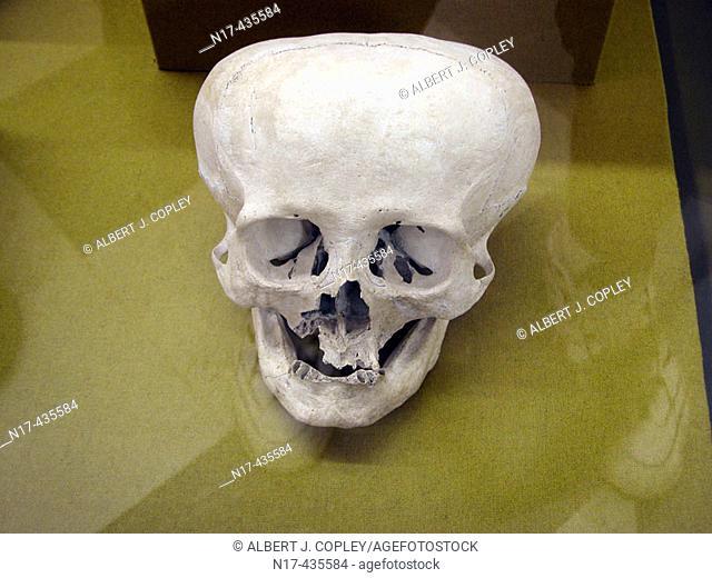 Maya human skull intentionally deformed during childhood in museum, Mérida. Yucatán, Mexico