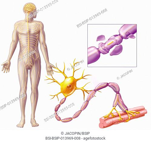 Illustration of multiple sclerosis, which damages the myelin sheath of the axons and motoneurons. This auto-immune disease leads to a deterioration in...