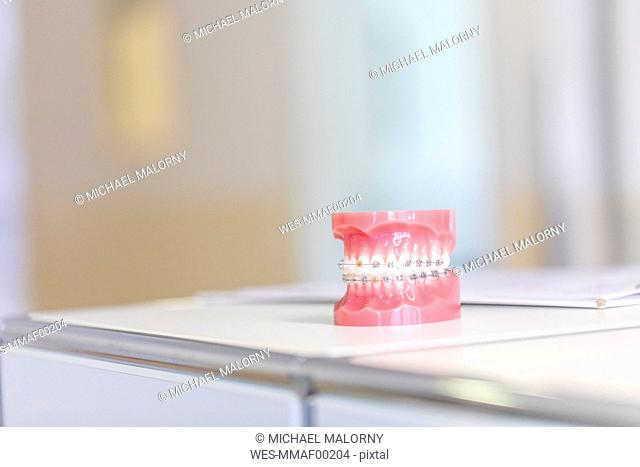Tooth model with braces in dental surgery